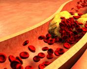 Cholesterolis