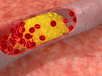 sumažinti cholesterolio kiekį